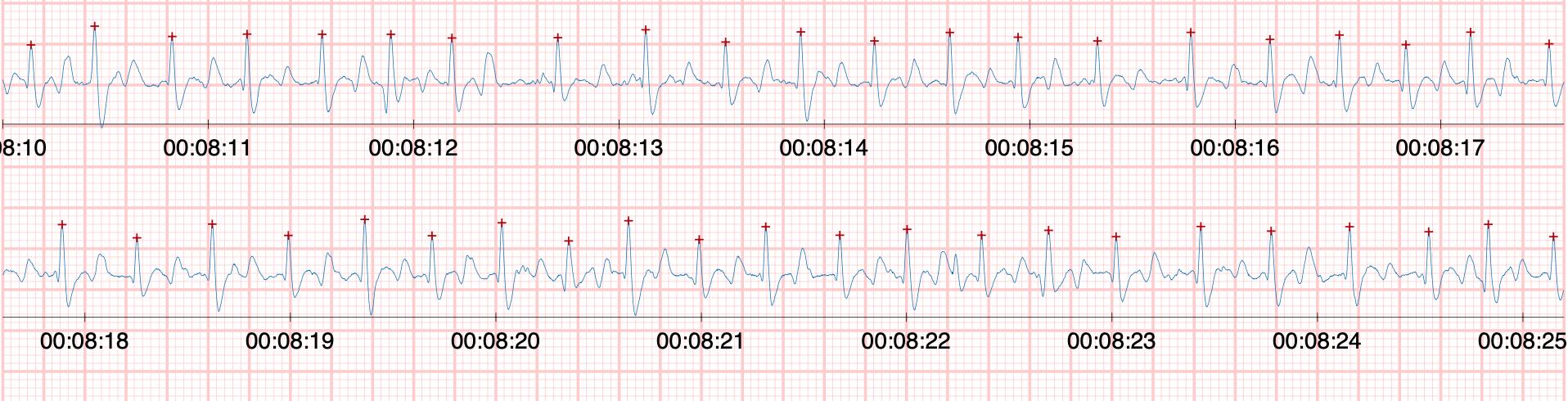Exemple de fibrillation atriale